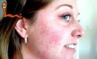 Подкожный клещ — симптомы заражения и лечение демодекоза