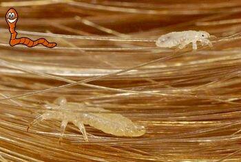 вши на волосах человека